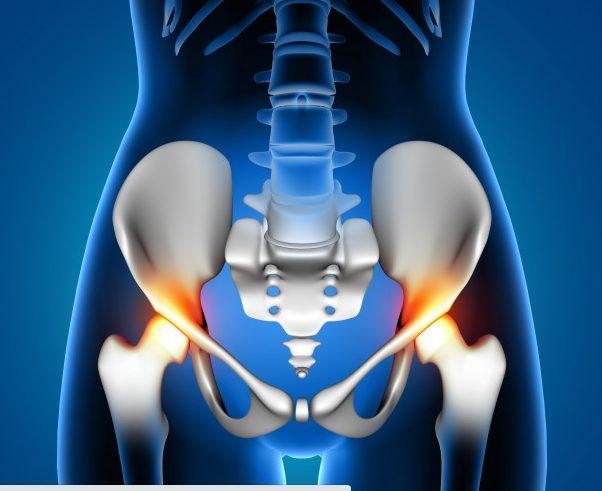 Artrosi dell'Anca: Cause, Sintomi e Cure